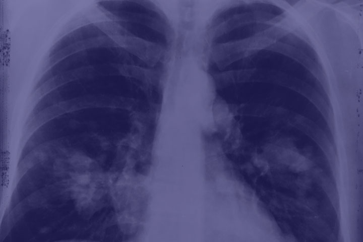 COVID-19 affects whole body – not just lungs